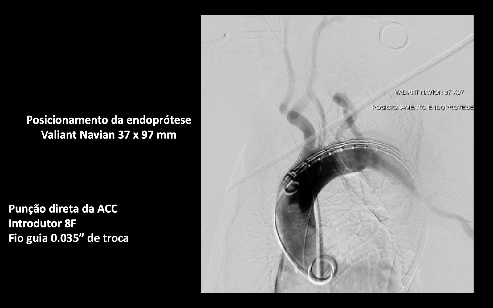 5 - TRATAMENTO ENDOVASCULAR DE ÚLCERA SINTOMÁTICA DA AORTA TORÁCICA (TVAR)